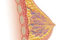 クーパー靭帯を再生する方法とは?手術をしなくても治せるの?